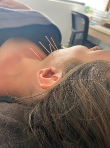 dry needling of the tmj jaw by an osteopath