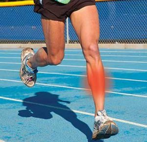 shin splints in runner